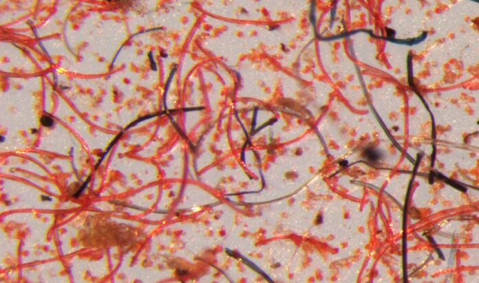 Microscope image of the tiny fibres that shed from garments over their lifetime. © Mathew Watkins, Patagonia